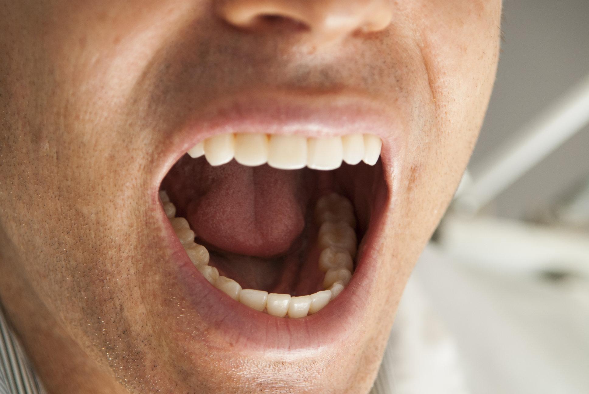 картинка мужик с открытым ртом результате девочка выпрыгнула